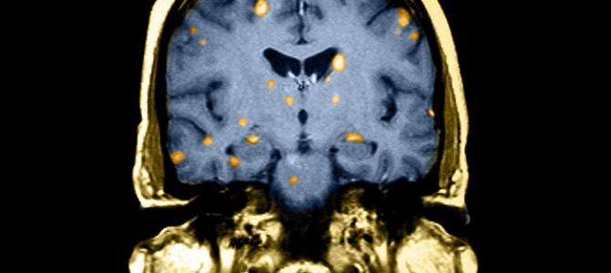 Множественные метастазы: радиохирургия или облучение всего мозга?