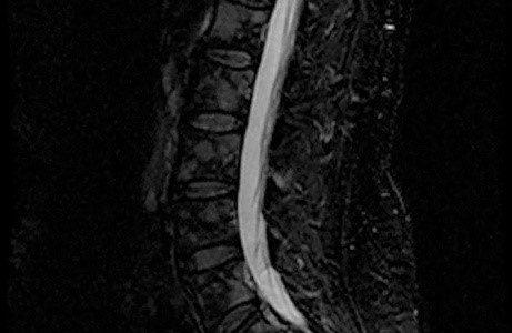 Преимущества дистанционной лучевой терапии для пациентов с бессимптомными метастазами в кости