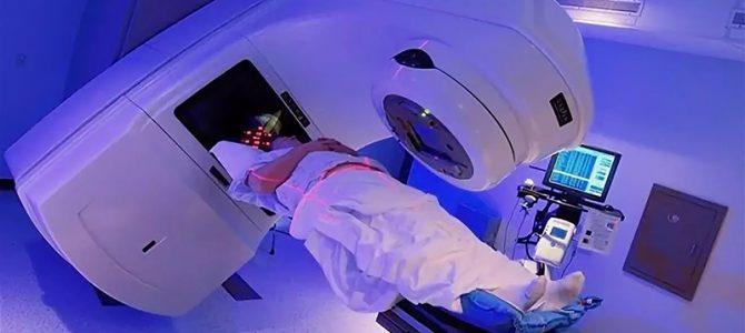 Гипофракционированная лучевая терапия РПЖ: два или три раза в неделю?