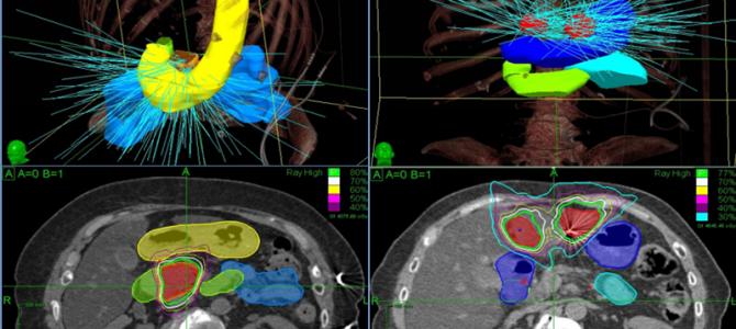 Стереотаксическая лучевая терапия улучшает выживаемость при олигометастазах