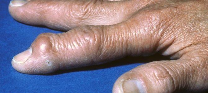Облучение уменьшает боль при остеоартрите пальцев
