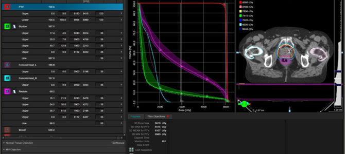 Автоматизированное планирование лучевой терапии: быстрее и точнее